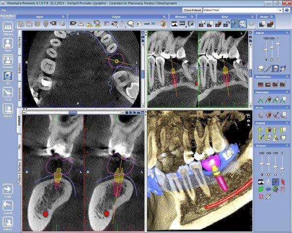 Planmega_implantplanning_1024